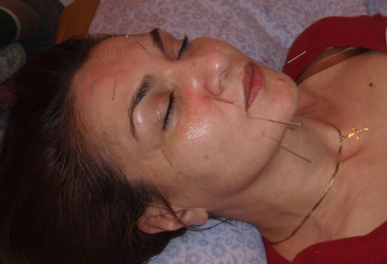 facial rejuvenation 2008 jpg 1080x810